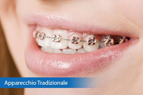 Apparecchio Denti Tradizione