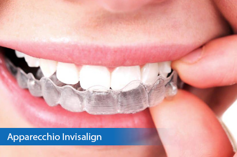 Apparecchio Denti Invisalign
